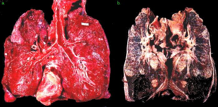 kimboleeey — Dangers Of Smoking Wikipedia